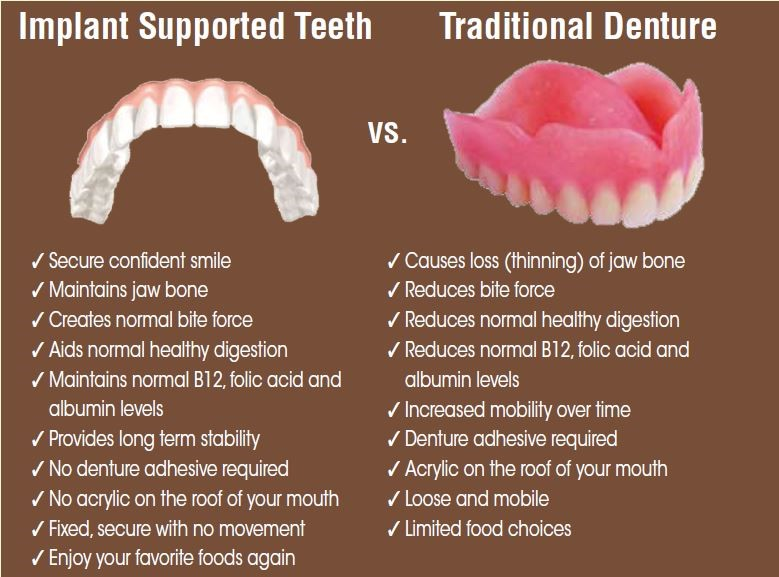 dentures vs all on 4 implants in chicago