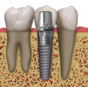 can dental implants fail chicago