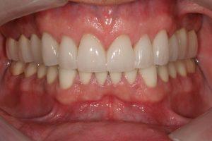 full-mouth-rehabiilitation